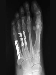 перелом диафиза 5-й плюсневой кости три вида мармелада